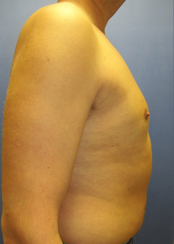 Male Breast Reduction Gallery - Patient 5951215 - Image 6