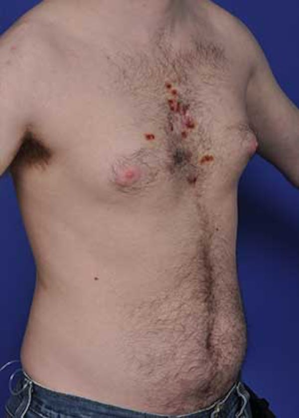 Male Breast Reduction Gallery - Patient 5951217 - Image 1