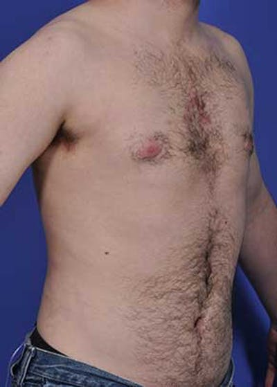 Male Breast Reduction Gallery - Patient 5951217 - Image 2