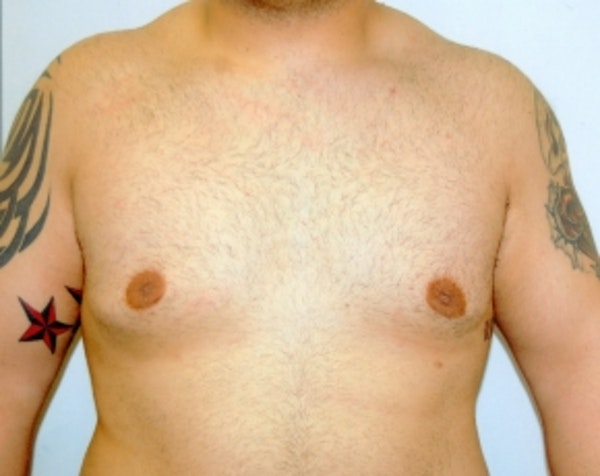 Male Breast Reduction Gallery - Patient 5951239 - Image 2