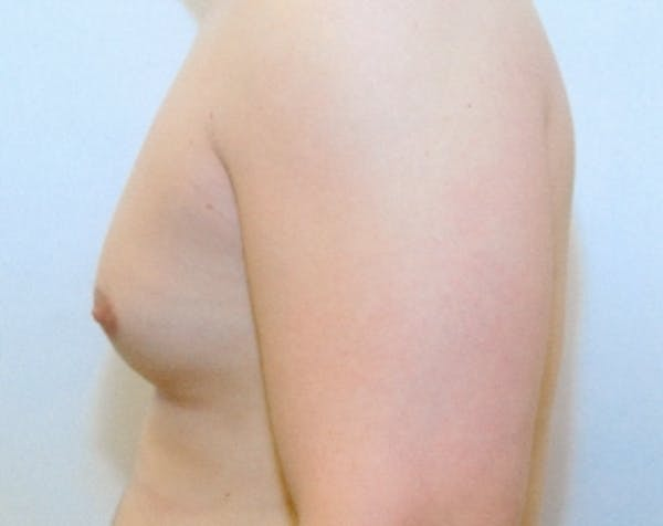Male Breast Reduction Gallery - Patient 5951286 - Image 1