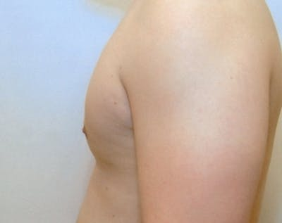 Male Breast Reduction Gallery - Patient 5951286 - Image 2