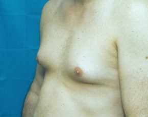 Male Breast Reduction Gallery - Patient 5951325 - Image 1