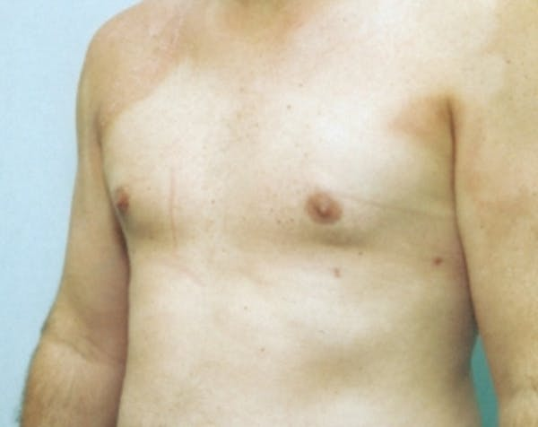 Male Breast Reduction Gallery - Patient 5951325 - Image 2