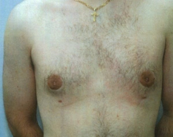 Male Breast Reduction Gallery - Patient 5951374 - Image 2