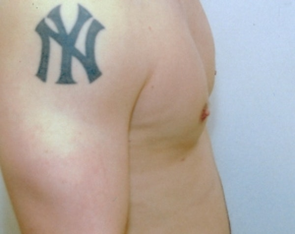 Male Breast Reduction Gallery - Patient 5951409 - Image 2
