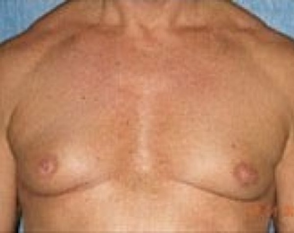 Male Breast Reduction Gallery - Patient 5951433 - Image 1