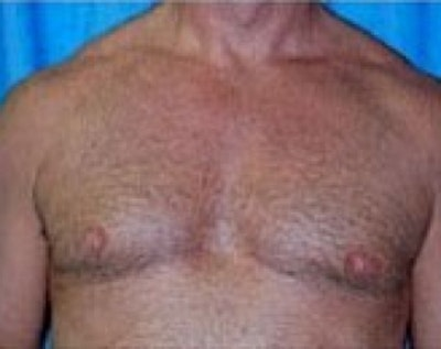 Male Breast Reduction Gallery - Patient 5951433 - Image 2