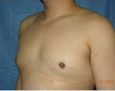 Male Breast Reduction Gallery - Patient 5951434 - Image 2