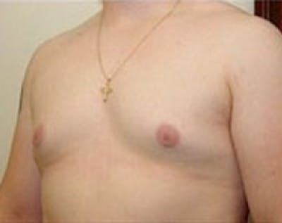 Male Breast Reduction Gallery - Patient 5951436 - Image 2