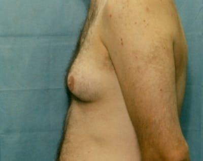 Male Breast Reduction Gallery - Patient 5951438 - Image 1