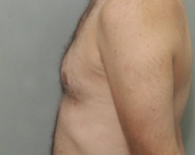 Male Breast Reduction Gallery - Patient 5951438 - Image 2