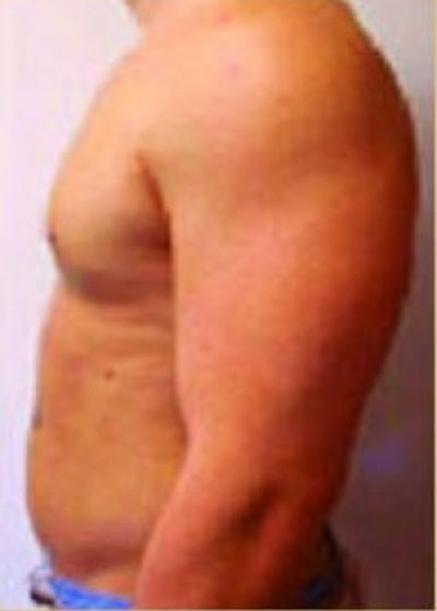 Male Breast Reduction Gallery - Patient 5951439 - Image 2