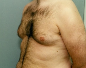 Male Breast Reduction Gallery - Patient 5951442 - Image 1