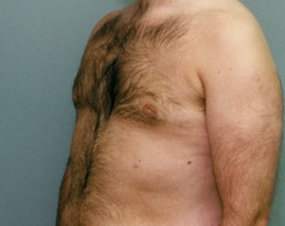 Male Breast Reduction Gallery - Patient 5951442 - Image 2