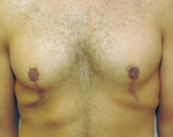 Male Breast Reduction Gallery - Patient 5951444 - Image 2