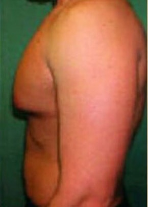 Male Breast Reduction Gallery - Patient 5951446 - Image 1