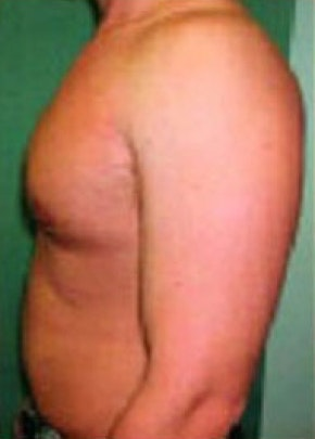 Male Breast Reduction Gallery - Patient 5951446 - Image 2