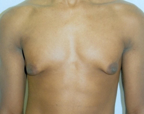 Male Breast Reduction Gallery - Patient 5951452 - Image 1