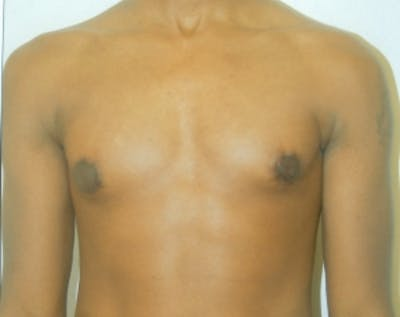 Male Breast Reduction Gallery - Patient 5951452 - Image 2
