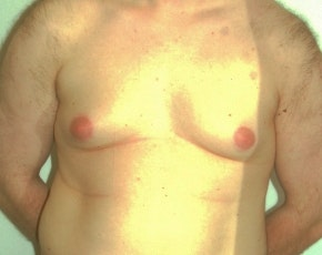 Male Breast Reduction Gallery - Patient 5951454 - Image 1