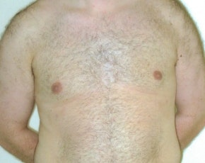 Male Breast Reduction Gallery - Patient 5951454 - Image 2