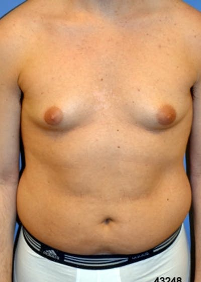 Male Breast Reduction Gallery - Patient 5951671 - Image 1