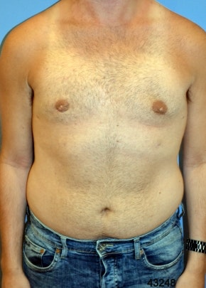 Male Breast Reduction Gallery - Patient 5951671 - Image 2