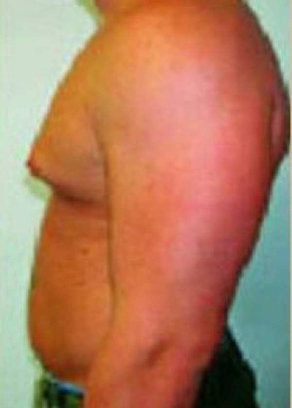 Male Breast Reduction Gallery - Patient 5951672 - Image 1
