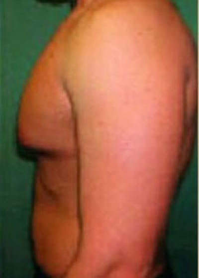 Male Breast Reduction Gallery - Patient 5951677 - Image 1