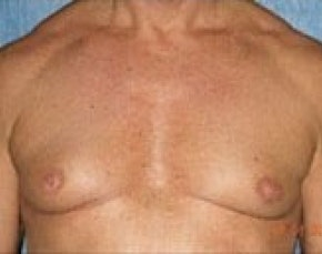 Male Breast Reduction Gallery - Patient 5951679 - Image 1