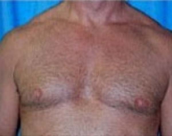 Male Breast Reduction Gallery - Patient 5951679 - Image 2