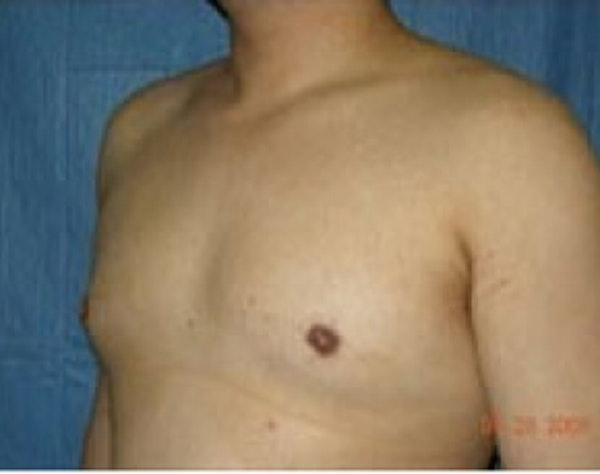 Male Breast Reduction Gallery - Patient 5951680 - Image 2