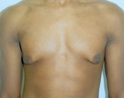 Male Breast Reduction Gallery - Patient 5951686 - Image 1