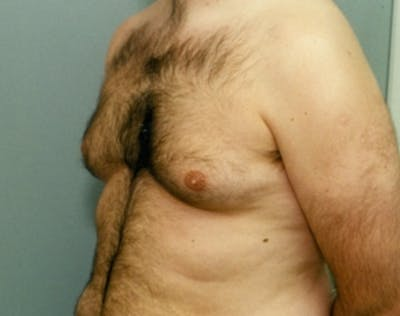 Male Breast Reduction Gallery - Patient 5951689 - Image 1