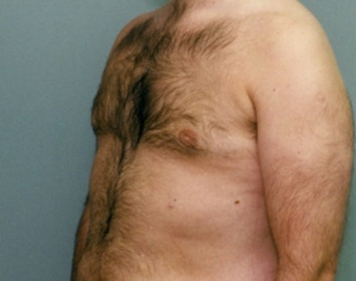 Male Breast Reduction Gallery - Patient 5951689 - Image 2