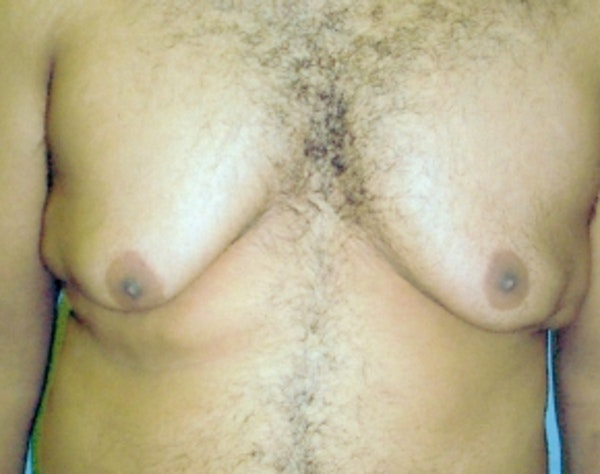 Male Breast Reduction Gallery - Patient 5951691 - Image 1