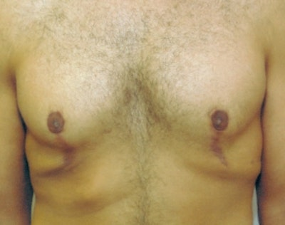 Male Breast Reduction Gallery - Patient 5951691 - Image 2