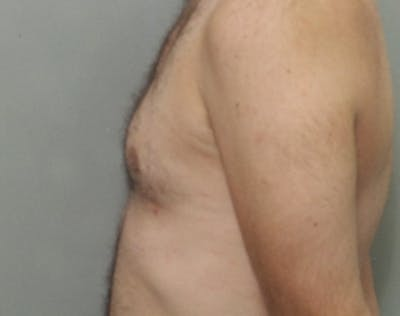 Male Breast Reduction Gallery - Patient 5951694 - Image 2