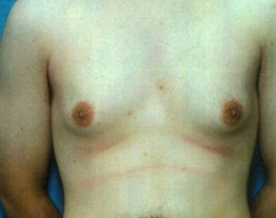 Male Breast Reduction Gallery - Patient 5951696 - Image 1