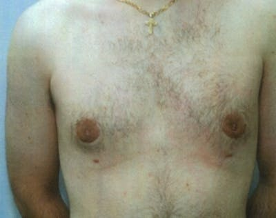 Male Breast Reduction Gallery - Patient 5951696 - Image 33