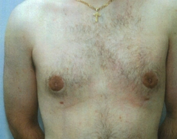 Male Breast Reduction Gallery - Patient 5951696 - Image 2