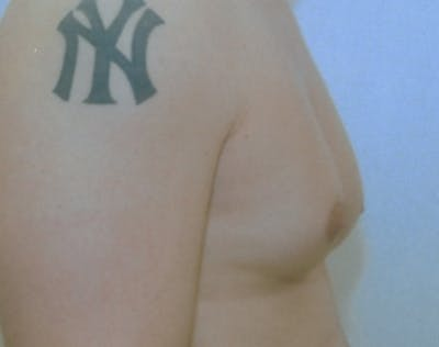 Male Breast Reduction Gallery - Patient 5951698 - Image 1