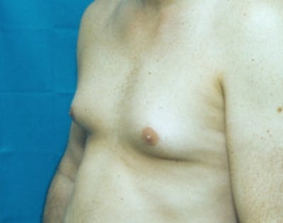 Male Breast Reduction Gallery - Patient 5951701 - Image 1