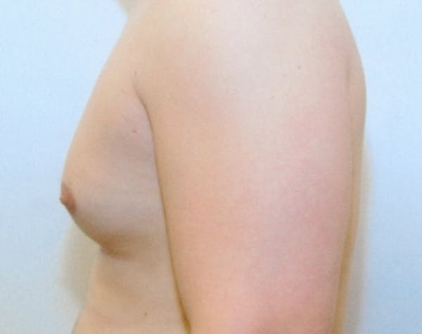 Male Breast Reduction Gallery - Patient 5951702 - Image 1