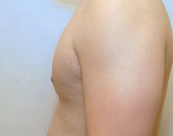 Male Breast Reduction Gallery - Patient 5951702 - Image 2