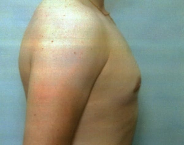 Male Breast Reduction Gallery - Patient 5951703 - Image 2