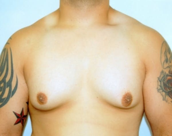 Male Breast Reduction Gallery - Patient 5951704 - Image 1