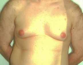Male Breast Reduction Gallery - Patient 5951707 - Image 1
