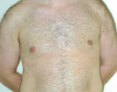 Male Breast Reduction Gallery - Patient 5951707 - Image 2